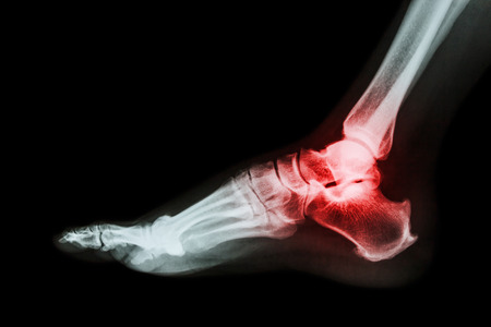 Arthritis at ankle joint (Gout , Rheumatoid arthritis) photo