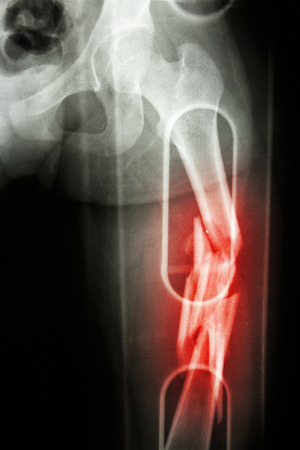 spliced: Film X-ray show comminute fracture shaft of femur (thigh bone). It was spliced