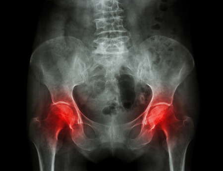 Film x-ray pelvis of osteoporosis patient and arthritis both hip