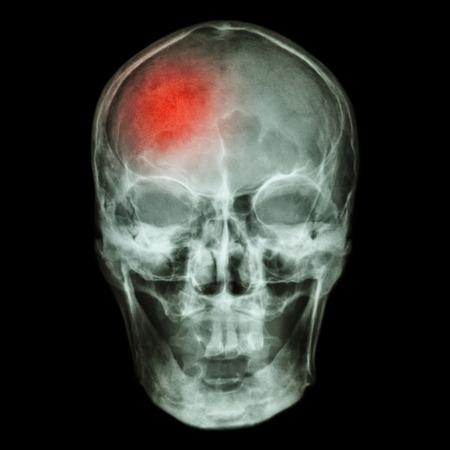 neuro: Stroke (Cerebrovascular accident) Stock Photo