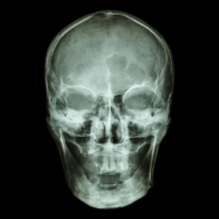 ct scan: X-ray skull (Asian)