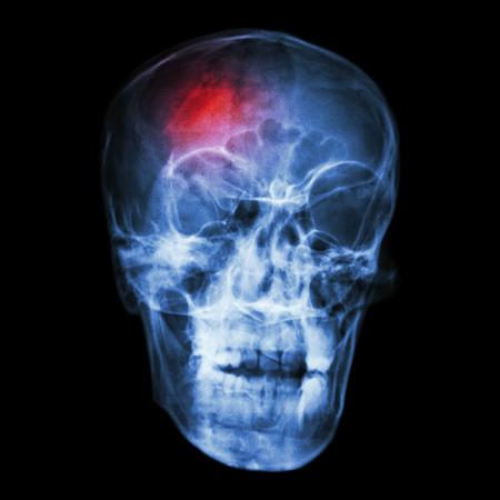 Stroke (cerebrovascular accident)  X-ray side of asian skull