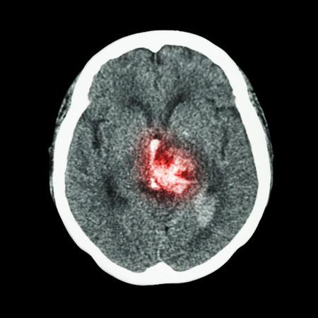 hemorrhagic: CT scan of brain : show hemorrhagic stroke