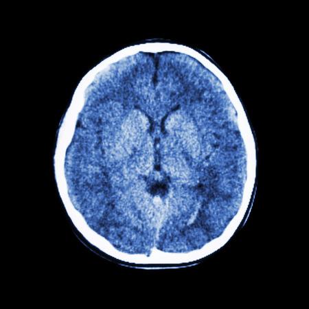 脳 (トモグラフィ) の正常な CT スキャン