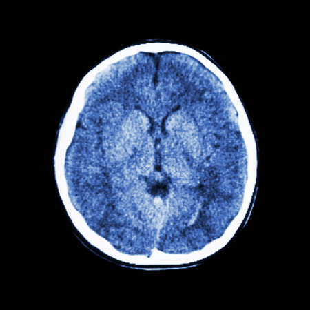 brain disease: normal CT scan of brain (Computed tomography) Stock Photo