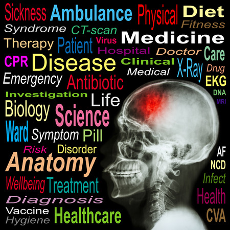 neurosurgery: X-ray skull and Stroke and Medical word cloud