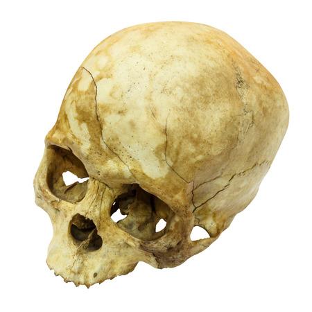 huesos humanos: Cráneo humano Fractura (lado superior, ápice) (mongoloide, de Asia) en el fondo aislado