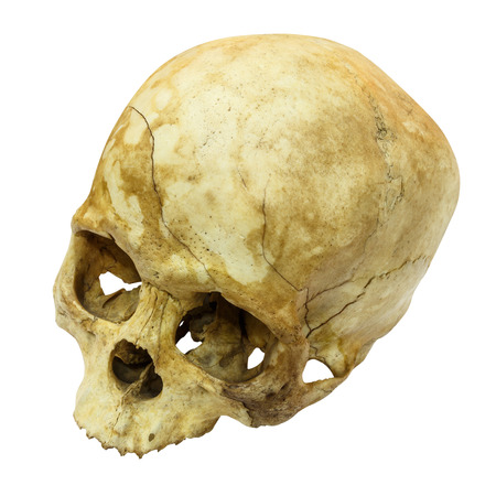 human bones: Human Skull Fracture(top side,apex)(Mongoloid,Asian) on isolated background