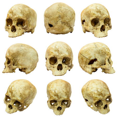 Collection of human skull (Mongoloid) and broken skull photo