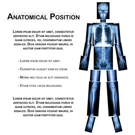 entire: Anatomical Position. (X-ray whole body : head ,neck ,thorax ,heart ,lung ,rib ,shoulder ,scapula ,arm ,forearm ,elbow ,wrist ,hand ,digit ,abdomen ,hip ,pelvic ,leg ,thigh ,knee ,ankle ,heel ,foot )