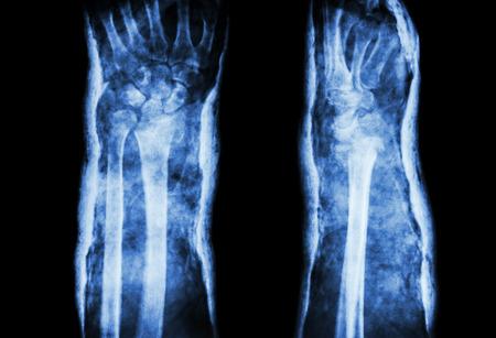 distal: frattura del radio distale (frattura di Colles) con ghisa