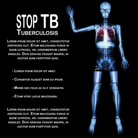 communicable: Stop TB(Tuberculosis) (Human bone raise hand) (Whole body  :head skull neck spine shoulder arm elbow forearm wrist hand finger thorax chest heart rib back abdomen pelvis hip thigh knee leg ankle foot) Stock Photo