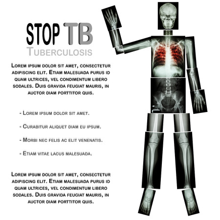 Stop TB(Tuberculosis) (Human bone raise hand) (Whole body  :head skull neck spine shoulder arm elbow forearm wrist hand finger thorax chest heart rib back abdomen pelvis hip thigh knee leg ankle foot) photo
