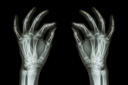 X-ray normal human hands (front) on black background photo