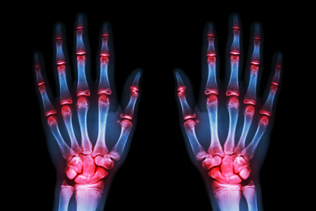 multiple joint arthritis both hands ( Gout , Rheumatoid ) on black background photo