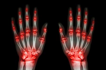 rheumatoid: multiple joint arthritis both hands ( Gout , Rheumatoid ) on black background