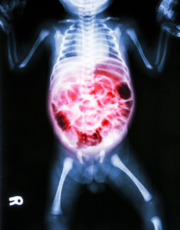 enteritis: Enteritis (X-ray of sick infant and inflammation of intestine)