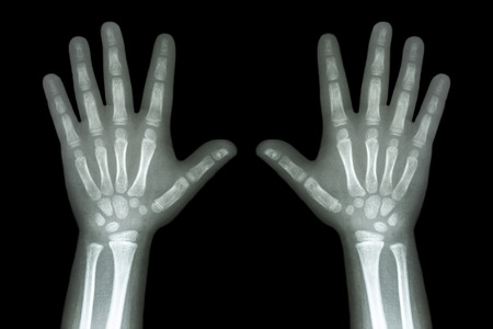 X-ray both child hands on black background photo