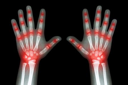 artritis: La artritis reumatoide (rayos X ambas manos del niño y artritis de la articulación múltiple) Foto de archivo