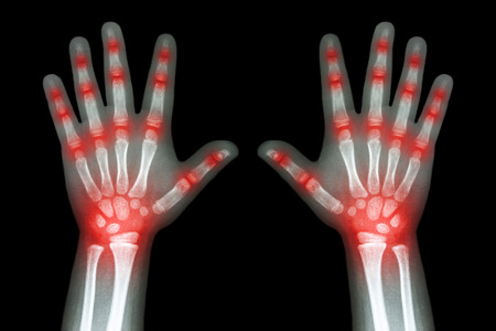 arthritis: Rheumatoid arthritis ( X-ray both child hands and multiple joint arthritis )