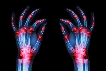 gout: multiple joint arthritis both adult hands ( Gout , Rheumatoid ) on black background