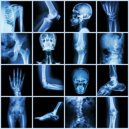 human bones: Collection human joint ( skull head neck shoulder chest thorax shoulder arm elbow forearm wrist hand finger palm spine back pelvis thigh knee leg foot ankle toe) Stock Photo