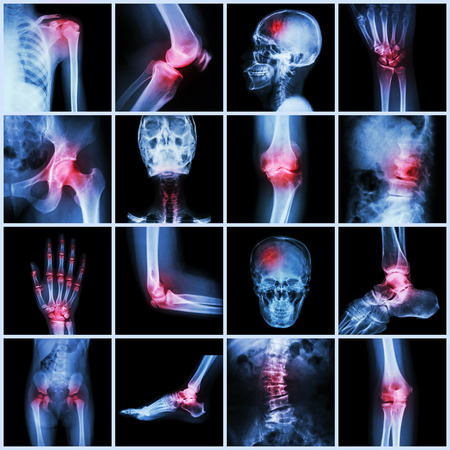 Collection human joint and arthritis and stroke ( skull head neck shoulder chest thorax shoulder arm elbow forearm wrist hand finger palm spine back pelvis thigh knee leg foot ankle toe)