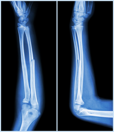 forearm: Fracture shaft of ulnar bone ( forearm bone )  :  ( front and side view )