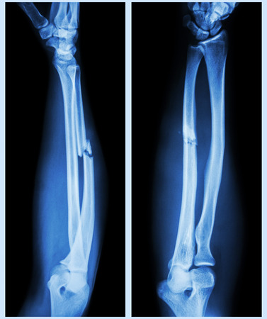 forearm: X-ray forearm (  front , side ) : Comminuted fracture shaft of ulnar bone ( forearm bone )