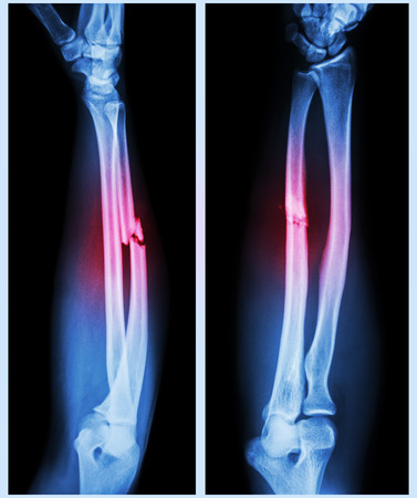 human bone: X-ray forearm (  front , side ) : Comminuted fracture shaft of ulnar bone ( forearm bone )