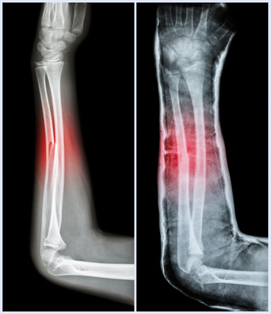 splint: Fracture shaft of ulnar bone ( forearm bone )  : ( Left : pre-treatment  ,  Right : Psot-treatment (splint with cast) )