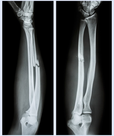 fracture arm: X-ray forearm (  front , side ) : Comminuted fracture shaft of ulnar bone ( forearm bone )