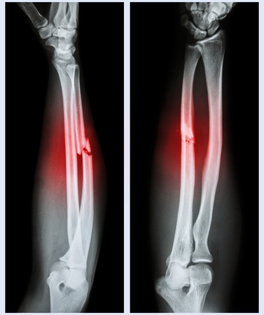 broken wrist: X-ray forearm (  front , side ) : Comminuted fracture shaft of ulnar bone ( forearm bone )