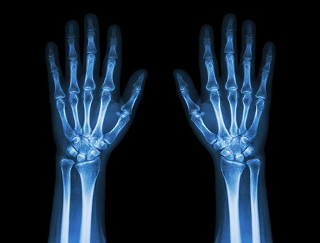 X-Ray Hands ( front view ) : Normal human hands