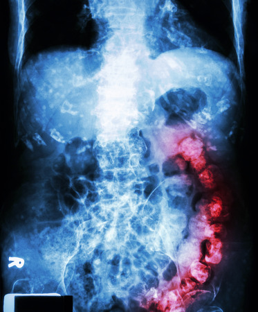 bowel:  Constipation    ( X-ray abdomen of old man : a lot of feces in large bowel and calcified at rib )