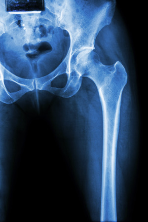 acetabulum: X-ray normal pelvis & hip joint Stock Photo