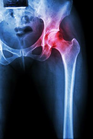 rheumatoid: Arthritis at hip joint ( X-ray pelvis & hip joint ) , ( Gout , Rheumatoid )