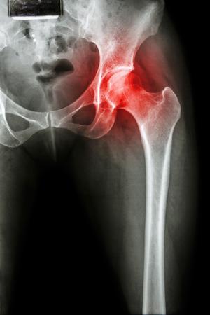 Arthritis at hip joint ( X-ray pelvis & hip joint ) , ( Gout , Rheumatoid )