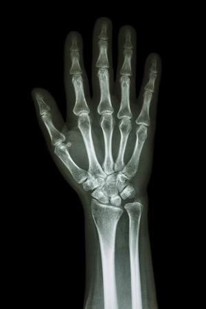 thumb x ray: X-ray hand & forearm AP ( anterior-posterior ) ( front view )