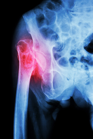 acetabulum: X-ray pelvis & hip joint  : Fracture head of femur (thigh bone)