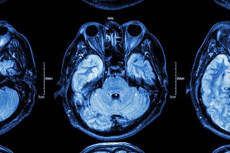 l�bulo: Ci�rrese encima de resonancia magn�tica del cerebro: Parte inferior del cerebro (ojos, l�bulo temporal del cerebro, cerebelo, tronco encef�lico)