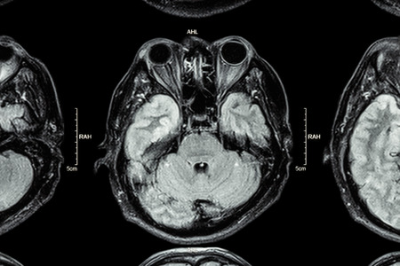 Close up of MRI brain : Lower part of brain ( eyes , temporal lobe of cerebrum , cerebellum , brain stem ) photo