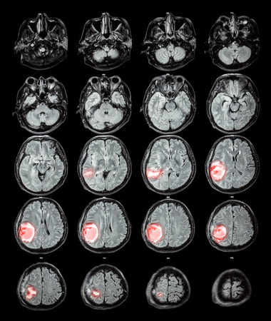 x mass: MRI brain : Brain tumor at right parietal lobe