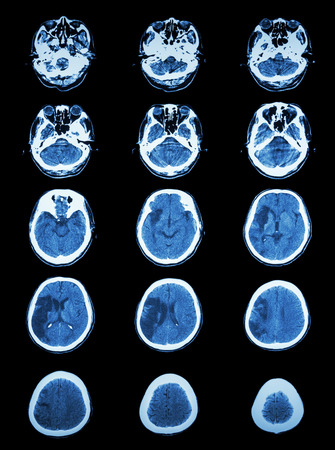 CT scan (computed tomography) of brain show cerebral infarction at right temporal-parietal lobe  ( ischemic stroke ) photo