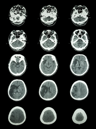 infarction: CT scan (computed tomography) of brain show cerebral infarction at right temporal-parietal lobe  ( ischemic stroke )