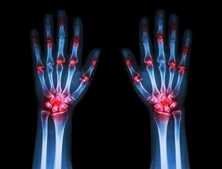 artritis: artritis poliarticular ambas manos (gota, reumatoide) en el fondo negro Foto de archivo
