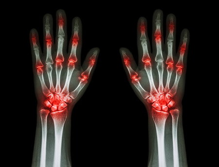 multiple joint arthritis both hands ( Gout , Rheumatoid ) on black background