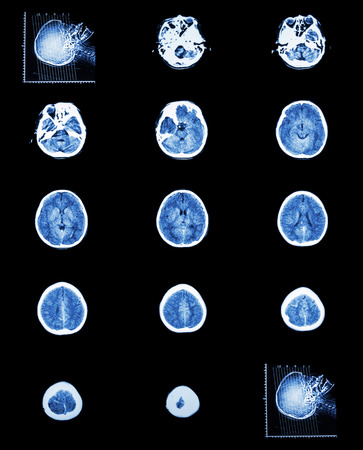 computed: CT scan (computed tomography) of normal brain ( cerebrovascular system )