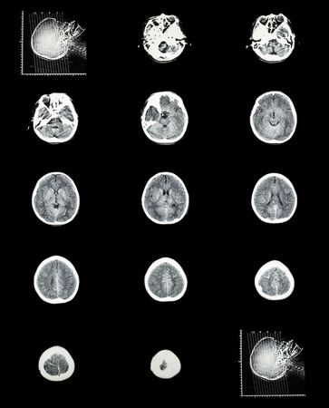 tomography: CT scan (computed tomography) of normal brain ( cerebrovascular system )