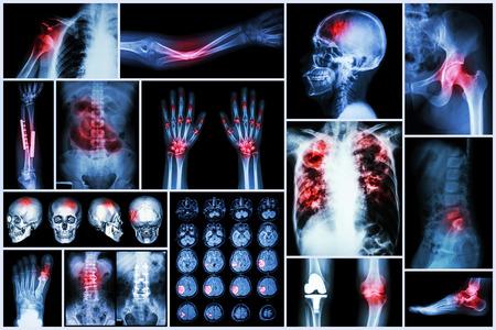 X-ray multiple disease (Stroke (cerebrovascular accident) : cva ,Pulmonary tuberculosis ,Bone fracture ,Shoulder dislocation ,Gout ,Rheumatoid arthritis ,Spondylosis ,Osteoarthritis ,Bowel obstruction photo